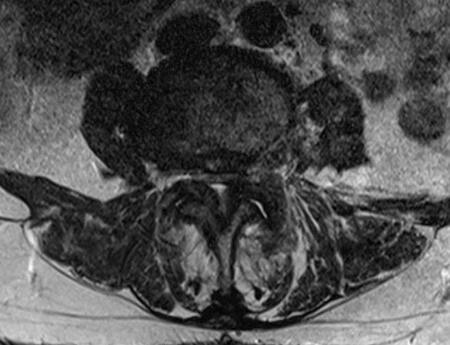 claudicatio intermittens behandling
