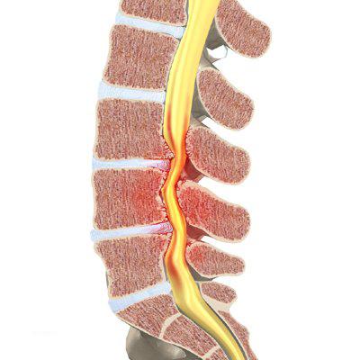 spinalstenose i lænden
