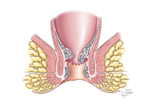 billeder for rygsmerter